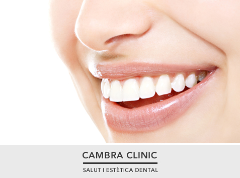cambra-clinic-invisalign-cat